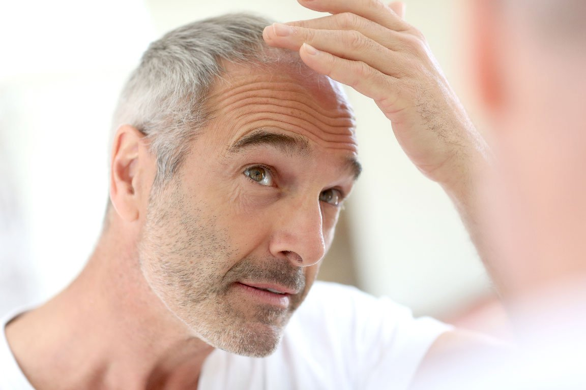 Hair-Loss-in-Men-Featured-Image