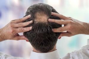 Man shows balding crown on head