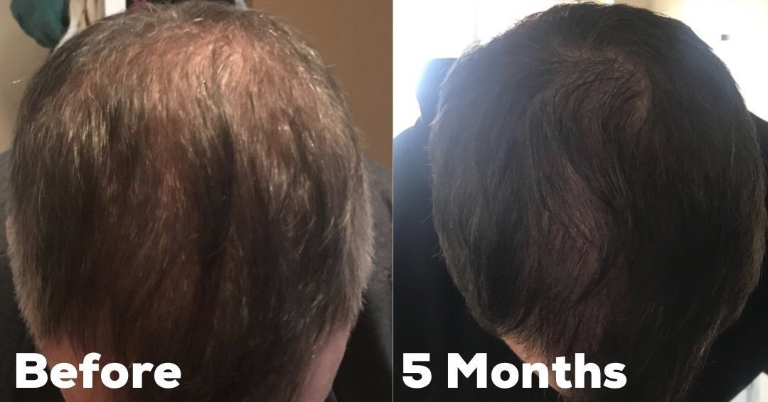 Picture showing the effectiveness of Finasteride for Male Pattern Baldness