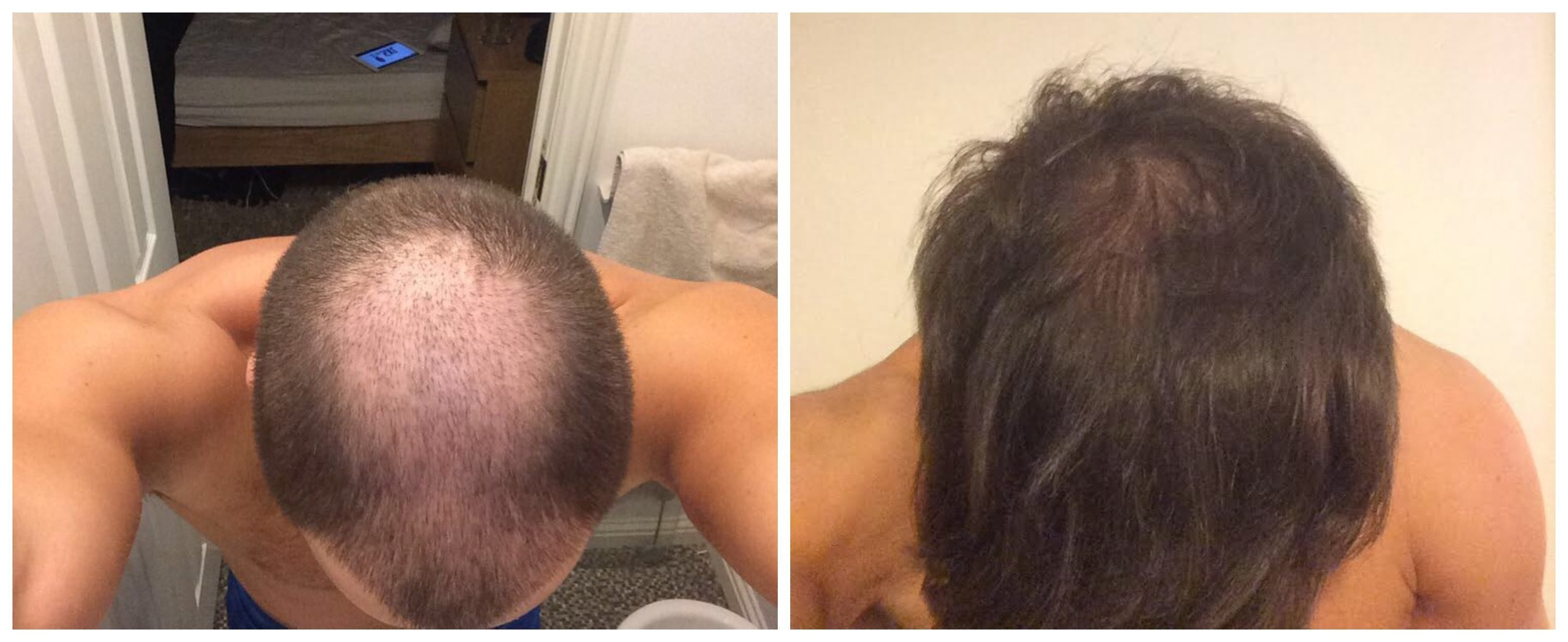 Photo showing the succes Liam had with Finasteride