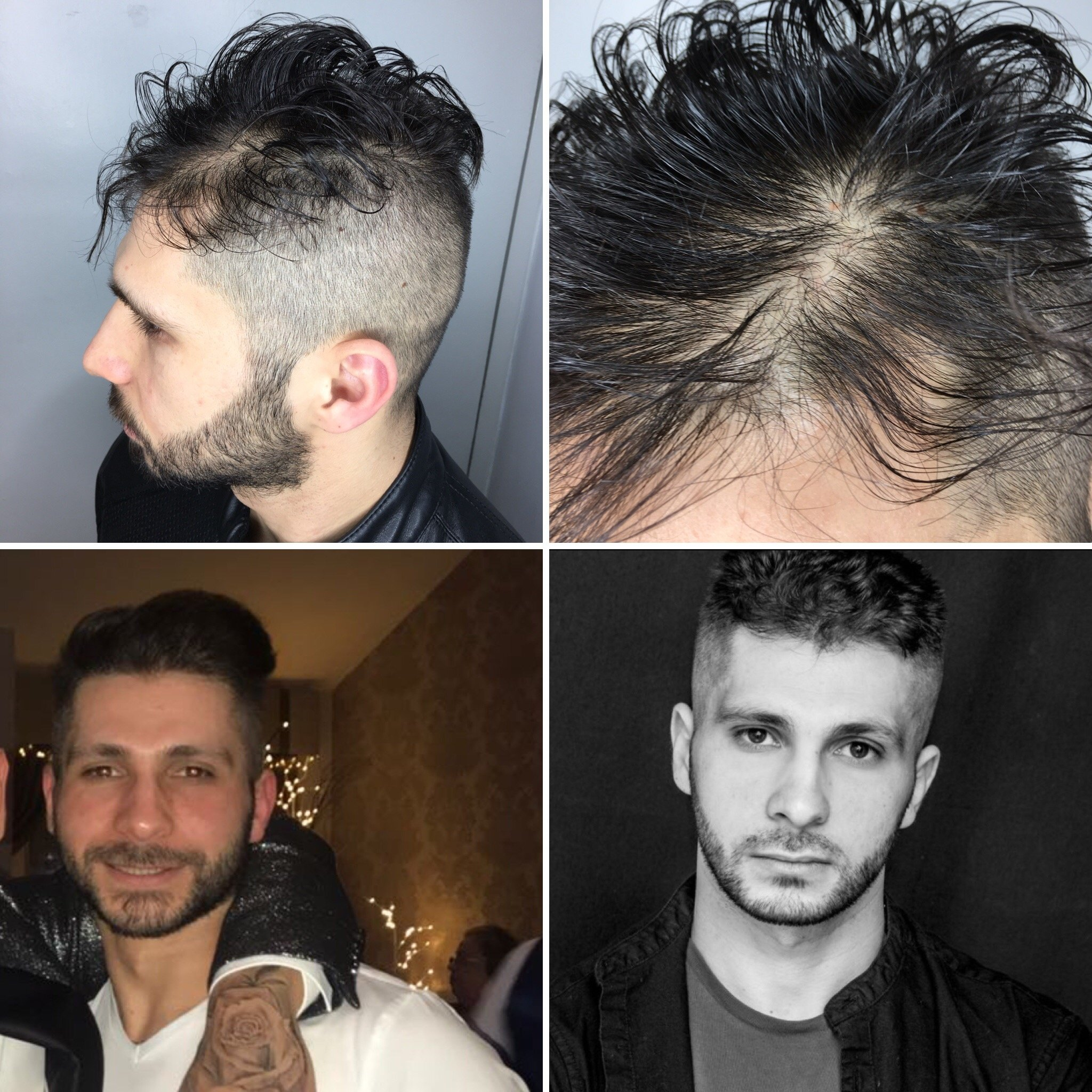 Picture to show how Finasteride helped Moaz